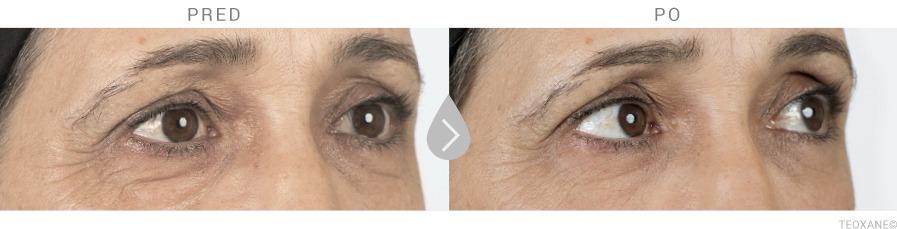 Odstránenie kruhov pod očami kyselinou hyalurónovou