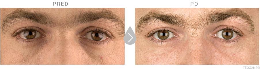 Výsledky Redensity pred a po