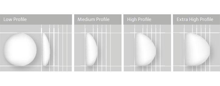 Profil/Projekcia prsníkového implantátu