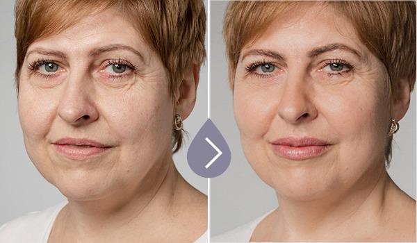 Ako naozaj prebieha ošetrenie tváre s kyselinou hyalurónovou?